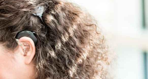 Seitenansicht eines weiblichen Hinterkopfs mit deutlich sichtbarem Cochlea Implantat